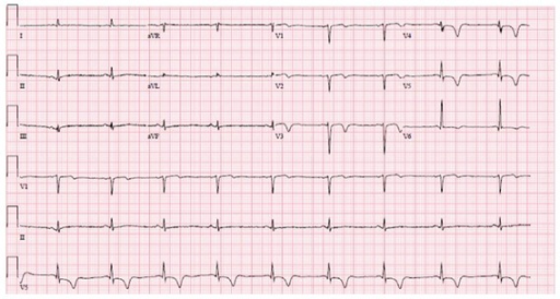 12-lead ECG at presentation demonstrating new anterolateral T-wave inversions.