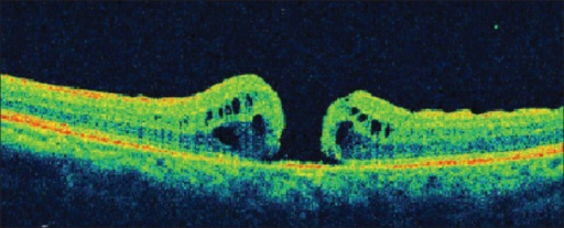 Six weeks after primary surgery. OCT showing type 2 closure of macular hole with cuff of subretinal fluid at the edges of the hole. Basal diameter of the macular hole is reduced