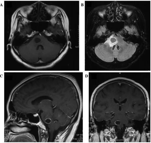 Magnetic resonance images of the cystic brainstem metastasis taken one week after the onset of symptoms. The tumor was 15×12×13 mm in size (volume, 1.3 cm3) prior to the initial gamma knife radiosurgery. (A) Axial T1-weighted image; (B) axial T2-weighted, fluid-attenuated inversion recovery image; (C) sagittal contrast-enhanced T1-weighted image; and (D) coronal contrast-enhanced T1-weighted image. FoV, field of view; GD-TPA, gadolinium diethylenetriamine pentaacetic acid.
