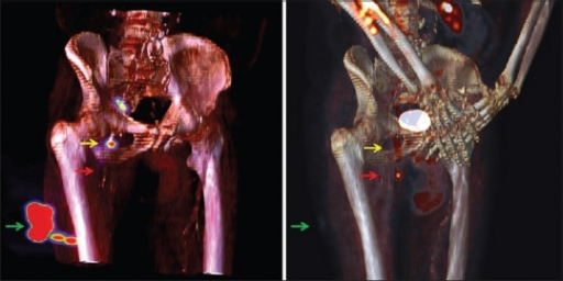 "Volume rendering of technetium-labeled radiocolloids single-photon emission computed tomography/computed tomography (left panel) and 18F-fluorodeoxyglucose positron emission tomography/computed tomography (right panel). The arrows show the sites of primary lesion (green), true ""sentinel"" crural node (red), false ""sentinel"" inguinal node (yellow)"