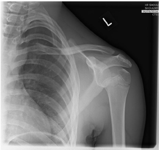 AP X-ray indicating minimally displaced mid-clavicle fracture.
