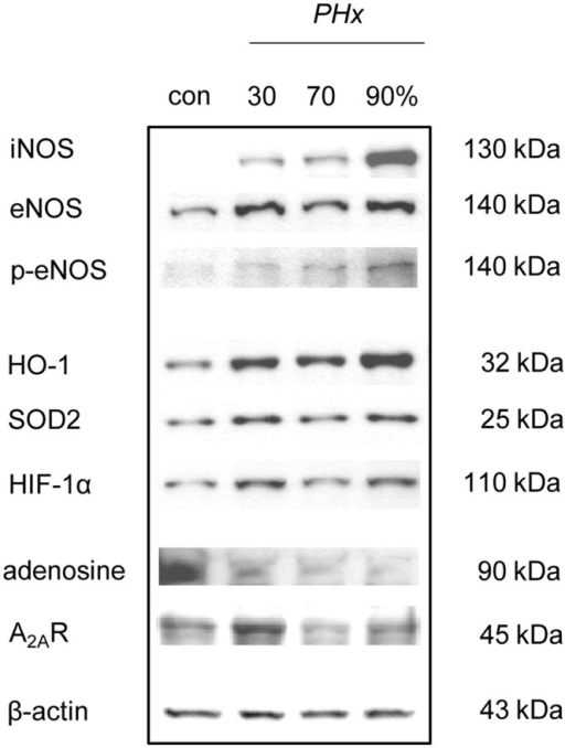 eNOS, iNOS, p-eNOS, HO-1, SOD2, HIF-1α, adenosine and A2AR expression.Representative western blot analyses of the protein expression of inducible (iNOS), endothelial (eNOS), phosphorylated endothelial nitric oxide synthase (p-eNOS), hemoxygenase-1 (HO-1), manganese superoxide dismutase 2 (SOD2), hypoxia-inducible factor-1α (HIF-1α) as well as adenosine and adenosine A2a receptor (A2AR) before (con) and 3 h after 30%, 70% and 90% hepatectomy (PHx).