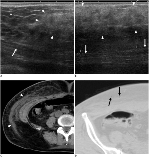 53-year-old woman who underwent liposuction 3 days previously.She had no symptoms at liposuction site or abdominal wall. A, B. On ultrasonography, heterogeneous hyperechoic area (arrowheads) compared with adjacent normal fat (asterisk) is seen in subcutaneous layer of abdominal wall. Abdominal muscle is seen below lesion (arrows). C. On non-contrast axial CT image, infiltrative lesion with fluid collection or lymphoedema is seen in subcutaneous area (arrowheads). D. Subcutaneous emphysema (arrows) is also seen in subcutaneous layer.