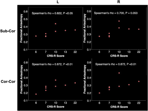 Spearman correlations of CRS-R scores and composite fiber tract FA values for DOC patients. Sub-Cor: subcortico-cortical composite fiber tract, Cor-Cor: cortico-cortical composite fiber tract.