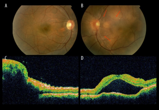 A Right Eye Fundus Examination Without Any Remarkable