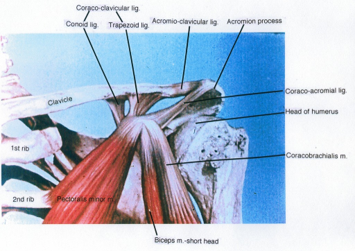 clavicle; second rib; first rib; pectoralis minor muscle; biceps brachii muscle; coracoclavicular ligament; conoid ligament; trapezoid ligament; acromioclavicular ligament; acromion process; coracoacromial ligament; humerus; coracobrachialis muscle