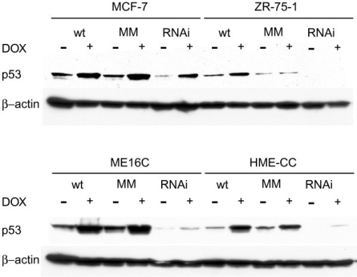 p53 protein expression is knocked down by RNAi expression. The expression of p53 was examined by Western blot analysis of extracts from MCF-7, ZR-75-1, HME-CC, and ME16C cell line parents and the same cell lines stably transduced with p53-targeted RNAi vector or p53 mismatch (MM) RNAi vector. Treatment with doxorubicin (24 h, 1μM) induced p53 expression in all cell lines and transductants, but induced levels were markedly lower in the p53-RNAi cells.