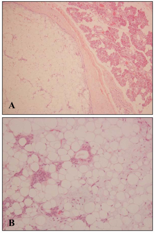 Microscopic finding of the tumor. A: well-demarcated lesion with fibrous capsule. Normal parotid gland can be seen (upper right). B: More than 95% of the tumor was adipose component, containing only scant epithelial components. In adipose tissue, there exists slight myxoid change (HE staining, A: ×100, B: ×200).