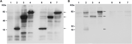 Western blots of whole-cell extract (a) and culture supernatants (b) of BHK-21 cells transfected with the different DNA vaccines.The recombinant proteins were detected in SDS-PAGE, using a mouse polyclonal antibody against the DENV2 NS3, harvested from transfections with pcTPA (lane 1), pcTPANS3P (lane 2), pcTPANS3H (lane 3), pcTPANS3 (lane 4), pcNS3P (lane 5), pcNS3H (lane 6) and pcNS3 (lane 7). Arrows indicate bands corresponding to the protease, helicase and full-length NS3 recombinant proteins.