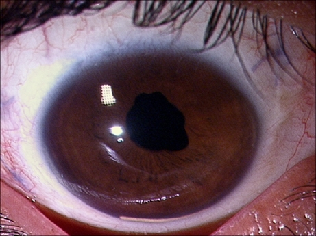 Slit lamp photograph of anterior segment of the right eye, following pars plana lensectomy and vitrectomy with SF6 tamponade with intravitreal injection of Ozurdex® for complicated cataract, in a 15-year-old male (case 3) showing migration of implant into the AC, 5 weeks after the surgery