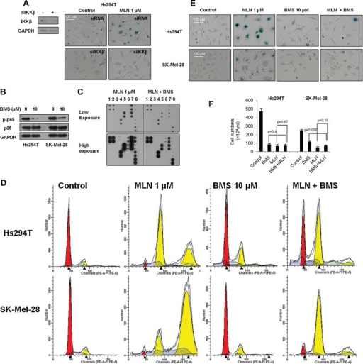 Disruption of IKKβ/NF-κB compromises drug-induced senescenceHs294T cells were transfected with IKKβ siRNA, and knockdown of IKKβ verified by Western blot. siRNA control or siIKKβ transfected cells were treated with 1 µM MLN8237 for 5 days, and senescence was evaluated by β-galactosidase staining.Hs294T and SK-Mel-28 cells were treated with the IKKβ inhibitor BMS-345541 (10 µM) for 48 h, and the level of p-p65 and p65 were analysed by Western blot.Hs294T cells were treated with 1 µM MLN8237 with or without 10 µM BMS-34554 for 5 days. After treatment, viable cells were counted and 5 × 105 cells were seeded into 10-cm plates in DMEM F-12 with 10% FBS. Once cells attached, serum-containing medium was replaced with serum-free medium and cells were cultured overnight. Cytokine secretion into the medium was assayed by cytokine array.Hs294T and SK-Mel-28 cells were treated with 10 µM BMS-345541, 1 µM MLN8237, or both for 2 days and DNA content was examined by FACS.Hs294T and SK-Mel-28 cells were treated with 10 µM BMS-345541, 1 µM MLN8237, or both for 5 days. After treatment, senescence was evaluated by β-galactosidase staining.Hs294T and SK-Mel-28 cells were treated with 10 µM BMS-345541, 1 µM MLN8237, or both for 5 days, and the viable cells were counted using a haemocytometer. Data indicate mean values ± SD (n = 3). With the exception of Fig 8C, all experiments were performed in triplicate with high reproducibility and representative experiments are shown.