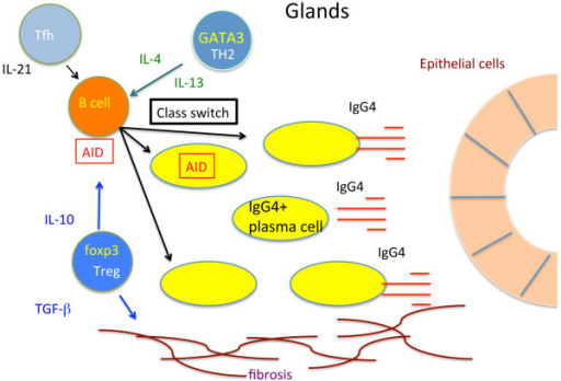 Molecular mechanism of IgG4-related disease. AID, activation-induced cytidine deaminase; IL, interleukin; TGF-β, transforming growth factor-beta; Th, T helper; Treg, regulatory T.