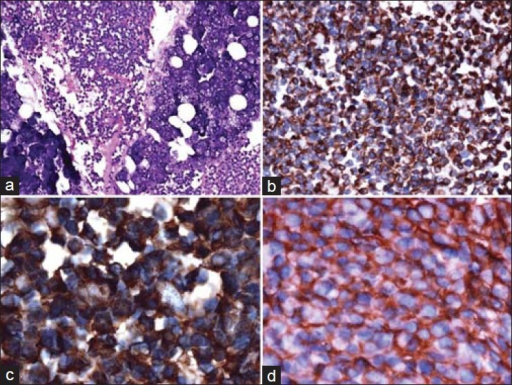 (a) A diffuse collection of small malignant round to oval cells with hyperchromatic nuclei, inconspicuous nucleoli, with vacuolated to pale cytoplasm and high mitotic activity, and scattered blood vessels with peritheliomatous arrangements of the tumor cells (H and E, ×20), (b) Tumor cells showing immunopositivity to vimentin (IHC, ×20), (c) Tumor cells showing immunopositivity to S-100 (IHC, ×100), (d) Tumor cells showing immunopositivity to CD-99 (IHC, ×40)