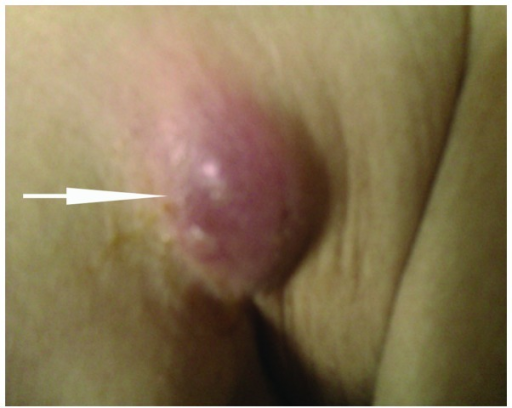Cutaneous metastatic lesion at the right anterior axillary fold. The nodule is round, indurated and violaceous, measuring 1.5×1.5 cm.