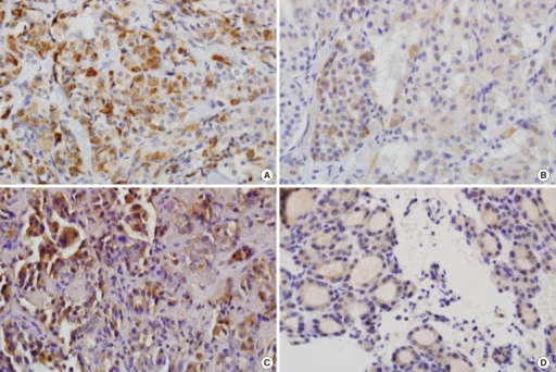 Glucagon-like peptide-1 receptor (GLP-1R) expression in medullary thyroid carcinoma and nodular hyperplasia. (A) and (B) show medullary thyroid carcinoma samples positive for GLP-1R, with strong (A) and mixed strong and weak (×400) (B) immunoreactivity (×400). (C) and (D) show nodular hyperplasia samples positive for GLP-1R. (C) Strong immunoreactivity (×400). (D) Weak immunoreactivity (×400).