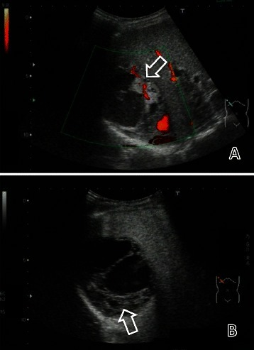 Color Doppler and contrast-enhanced ultrasonography showing the multilocular cystic liver mass. Color Doppler ultrasonography (A) and vascular phase contrast-enhanced ultrasonography using Sonazoid (92 seconds after bolus injection) (B) showed the multilocular cystic mass consisted of thickened irregular septa and nodal walls with blood flow.