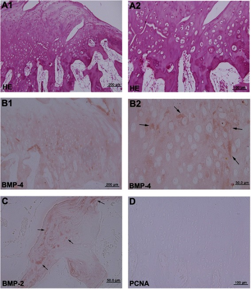 Photomicrographs of osteochondroma. (A) Hematoxylin and eosin staining showing proliferation of chondroid tissue deeply into marrow spaces, producing trabecular ossification. A2 is a higher magnification of panel A1. (B) Immunostaining for BMP-4, which is diffusely positive in the chondrocytes and surrounding matrix (arrows). (C) Immunostaining for BMP-2, which is slightly positive in the trabecular bone (arrows). (D) Immunostaining for PCNA, which is positive in a small number of tumor cells.