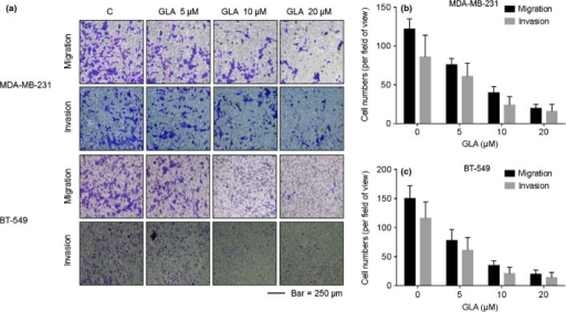 Glabridin (GLA) attenuates the invasive capacities of MDA-MB-231 and BT-549 cells. The migratory and invasive capacities of MDA-MB-231 and BT-549 cells were quantified by 24-well cell migration assays and by use of the BD Matrigel tumor invasion system. Cells were exposed to 0.0, 5.0, 10.0, or 20.0 μM GLA for 48 h. Epidermal growth factor (EGF) functioned as a chemoattractant for cancer migration and invasion. GLA reduced the migratory and invasive capacities of (a, top) MDA-MB-231 and (a, bottom) BT-549 cells. (b) Numbers of migrating/invading MDA-MB-231 cells treated with GLA. (c) Numbers of migrating/invading BT-549 cells treated with GLA (mean ± SD, n = 5).