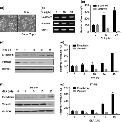 Effects of glabridin (GLA) on the epithelial–mesenchymal transition (EMT) markers in MDA-MB-231 and BT-549 cells. (a) Morphological images of MDA-MB-231 cells exposed to 0 or 10 μM GLA for 4 days. (b) MDA-MB-231 cells were exposed to 0, 10 or 20 μM GLA for 2 days. RT-PCR analyses and (c) relative mRNA levels of E-cadherin and vimentin were determined (mean ± SD, n = 3). MDA-MB-231 cells were exposed to 10 μM GLA for 0, 8, 16, 24 or 48 h. Western blot analyses (d) and relative protein levels (e) of E-cadherin and vimentin (mean ± SD, n = 3). BT-549 cells were exposed to 0, 1, 5, 10 or 20 μM GLA for 48 h. (f) Western blot analyses and (g) relative protein levels of E-cadherin and vimentin (mean ± SD, n = 3).