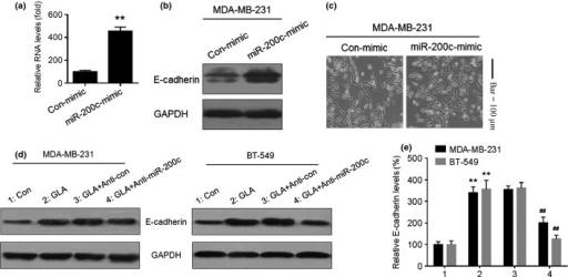 miR-200c is involved in expression of epithelial–mesenchymal transition markers in glabridin (GLA)-treated human breast cancer cells. After MDA-MB-231cells were transfected by con-mimic or miR-200c-mimic for 12 h. (a) quantitative RT-PCR analysis of mir-200c, (b) western blot analyses of E-cadherin and (c) morphological images of MDA-MB-231 cells exposed to con-mimic or miR-200c-mimic. After MDA-MB-231 and BT-549 cells were transfected with anti-con or anti-miR-200c for 12 h, they were exposed to 0 or 10 μM GLA for 48 h. (d) Western blot analyses and (e) relative protein levels of E-cadherin (mean ± SD, n = 3). **P < 0.01 compared with medium control MDA-MB-231 or BT-549 cells, ##P < 0.01 compared with anti-con-transfected MDA-MB-231 or BT-549cells cells exposed to 10 μM GLA.