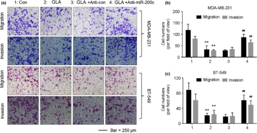 Glabridin (GLA) attenuates the migratory and invasive capacities of MDA-MB-231 and BT-549 cells through miR-200c. After cells were transfected by anti-con or anti-miR-200c for 12 h, they were exposed to 0 or 10 μM GLA for 48 h. (a) Transwell analyses and numbers of migratory/invasive MDA-MB-231 (b) and BT-549 (c) cells (mean ± SD, n = 5). **P < 0.01 compared with medium control MDA-MB-231 or BT-549 cells, and ##P < 0.01 compared with anti-con-transfected MDA-MB-231 or BT-549 cells exposed to 10 μM GLA.
