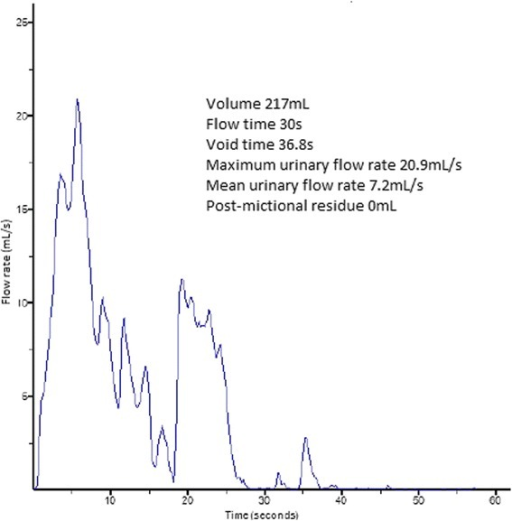 Revealing a micturition of 217mL with a maximum flow of 20.9mL/second.