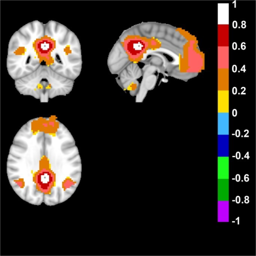Human Default Mode Network.The default mode network (DMN) was derived from a seed placed in Posterior Cingulate Cortex (Talairach coordinates in mm: 0; -47; 29). Top left image displays an axial, top right a sagittal and bottom image a coronal view of the human brain. Note the color-coded positive FC-values of the DMN in the posterior cingulate/retrosplenial cortex (precuneus) and bilateral parietal cortex in the axial view. In the sagittal and coronal view note the anterior prefrontal cortex, bilateral parietal cortex and posterior cingulate/retrosplenial cortex (precuneus). FC-values are displayed with a pseudo-colored scale bar; with increments of 0.2 each designated a color (see the color-bar in the image).