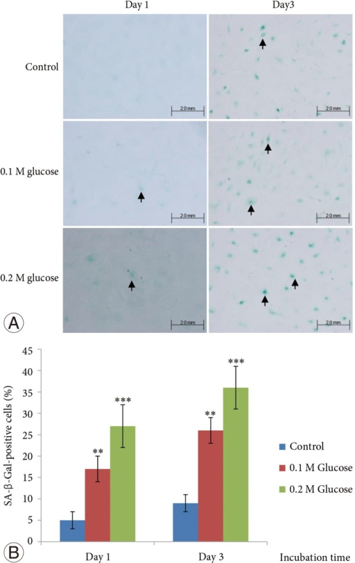 (A) Both high glucose concentrations increased the occurrence of senescence in rat notochordal cells for 1 and 3 days, as compared to the control. (B) The mean percentage of senescence-associated-beta-galactosidase (SA-β-Gal)-positive notochordal cells was significantly higher in rat notochordal cells treated with both high glucose concentrations when compared with the control. ***p <0.001, **p <0.01.