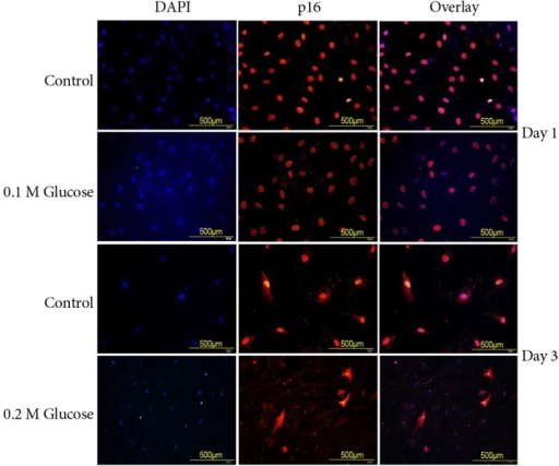 Immunofluorescence demonstrated that the two high glucose concentrations enhanced expression of p16 (red color) protein in rat notochordal cells at 1 and 3 days when compared with the control.