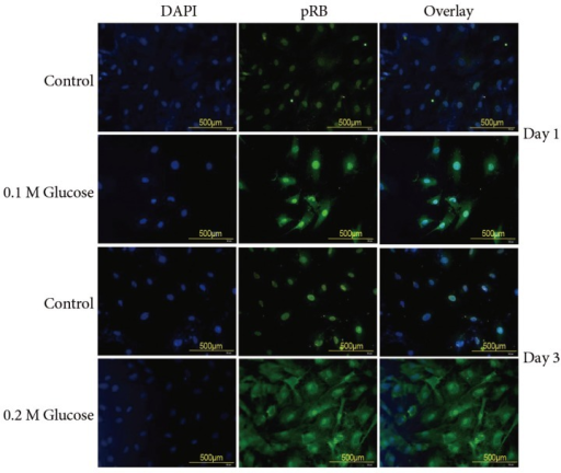 Immunofluorescence demonstrated that the two high glucose concentrations enhanced expression of pRB (green color) protein in rat notochordal cells at 1 and 3 days when compared with the control.