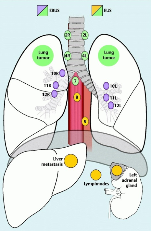 Illustration of mediastinal lymph node stations and abdominal regions reached by EUS and EBUS, respectively (Mountain-Dressler classification).