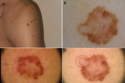 A. Large flat lesion on the arm of a 32 years old man. B. at the time of surgical excision, dermoscopy reveals the presence of asymmetry of color and structure, with pigment network and regressive features suggestive for melanoma. C and D. Digital dermoscopic follow up of the lesion reveals the asymmetric growth of the tumor (circle) over time.