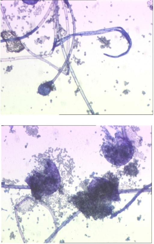 Microscopic exam revealed non-septate hyphae with branches ramifications that go in right angle of 90° but absence of apophyses and rhizoidales was noted