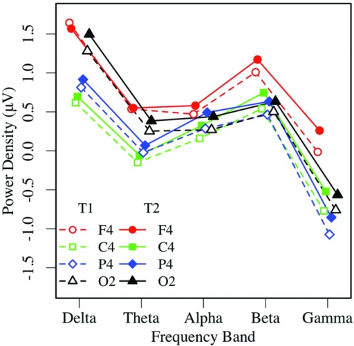 Eyes-open EEG power in the right hemisphere by frequency, region, and condition (T1 vs. T2).