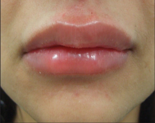 Swelling of the lips immediately after HA injection with needles