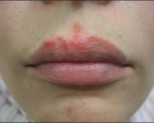 Herpetic reactivation after fillers