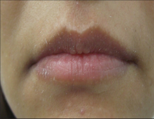 Shaping of upper and lower lips with 1 mL of HA: Pre-treatment