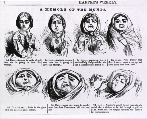 <p>A memory of the mumps.  7 vignettes of mumps in a woman.</p>