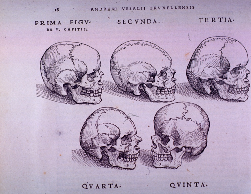 <p>Five malformations of the skull.</p>