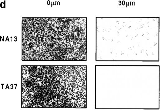Expression of TAM67 inhibits AP-1 transactivation and invasion of A431 cells. (a) Western blot  analysis of A431 cells, two NA  clones, and three TA clones using a  polyclonal antibody against c-Jun to  reveal expression of TAM67. (b)  Measurement of AP-1 directed CAT  expression in NA and TA cells as  described in Materials and Methods.  Columns show the average for three  independent experiments. (c) Quantitative analysis of chemotaxis and  invasion of A431, NA, and TA cells  in response to EGF as described in  Materials and Methods and elsewhere (Hennigan et al., 1994; Lamb  et al., 1997a). Columns show the average for four independent experiments. (d) Confocal images of propidium iodide stained cell nuclei of  NA13 and TA37 cells at the bottom  (0 μm) and at a distance 30 μm from  the bottom of the filter (i.e., 20 μm  into the Matrigel) after EGF stimulation.