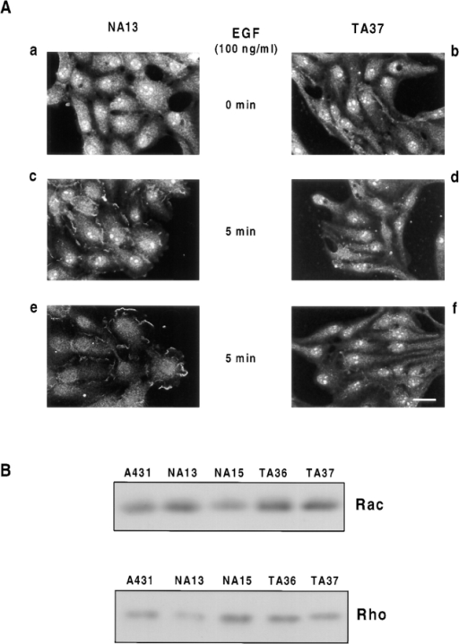 (A) Rac translocates to membrane ruffles in NA13 but  not TA37 cells after 5 min treatment with EGF. Confocal micrographs are shown for NA13 and TA37 cells stained using a mouse  anti-Rac mAb. (a and b) NA13 and TA37 cells untreated; (c and e)  NA13 cells treated with 100 ng/ml EGF for 5 min; (d and f) TA37  cells treated with 100 ng/ml EGF for 5 min. A representative field  of cells for at least three independent experiments is shown. (B)  Western blot analysis demonstrating equivalent levels of expression of Rac and Rho in A431, NA, and TA cells. Bar, 10 μm.