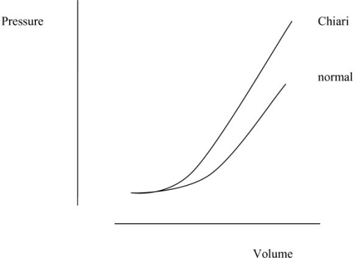 A hypothetical graph showing the relation between spinal or cranial pressure, and venous volume, with and without Chiari malformation. CSF obstruction at the foramen magnum divides the CSF space into cranial and spinal compartments. The sum of the pressure volume indices of the two spaces would approximate that of the unobstructed CNS. The pressure response to influx of venous volume either in the head or the spine may be enhanced by the presence of Chiari malformation.