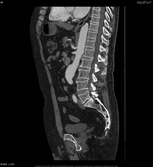 This is a sagittal CT w/ contrast of AAA & Celiac Trunk Aneurysm