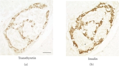 Amyloid-rich islet from a type-2 diabetic individual, in (a)immunolabeled for TTR, and in (b) for insulin. Note virtuallyidentical distribution of immune reactive cells. No nuclearstaining, bar 20 μm.