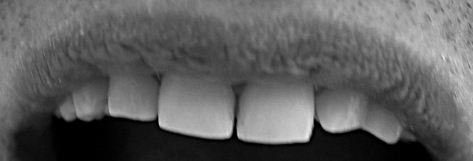 Two year follow-up intraoral view of the restoration.