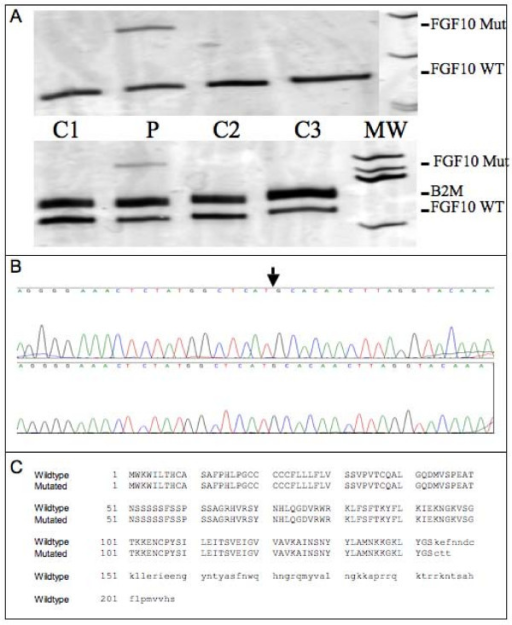 Detection and analysis of an aberrant transcript. 4a: Separation of FGF10 RT-PCR amplificates using sensitive silver-stained polyacrylamid gels reveals additional fragments for the patient's samples but not for control samples. Upper panel, Amplification of the FGF10 transcript using oligonucleotides designed to amplify exon 1 to exon 3 sequences; Lower panel, Amplification of the FGF10 transcript using oligonucleotides designed to amplify exon 2 to exon 3 sequences. C: control; P: patient. 4b: Sequence analysis of the excised and re-amplified additional exon 1/exon 3 fragment. The c.430-1, G > A aberration results in the use of an alternative splice acceptor site 127 bp upstream of exon 3. 4c: Putative effect of the 127 bp insertion on protein translation.