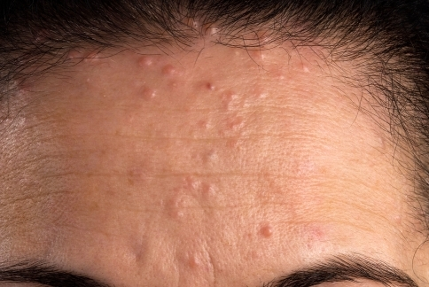 Multiple lenticular, smooth papules on the forehead of ...