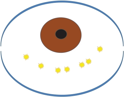 Schema of the coagulation area. The surgical area is in the inferior conjunctiva, 4 mm below the corneal limbus. The inferonasal and inferotemporal areas, which are hidden by the lower eyelid, should also be treated. Five to ten pulsatile coagulations are applied to the inferior conjunctiva (yellow bursts).Notes: Adapted with permission from Kashima T, Miura F, Akiyama H, Kishi S. Simple surgery for conjunctivochalasis using shrinking effect of heat coagulation with biopolar coagulation forceps. Atarashii Ganka 2010;27:229–233.18