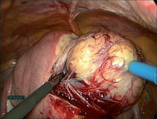 Enucleation of fibroid