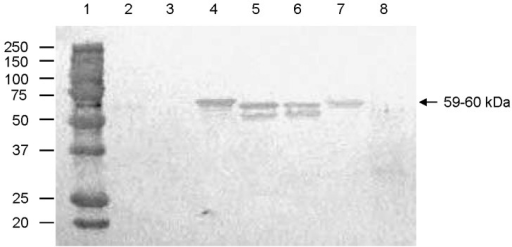 Antigenic cross-reactivity between human genogroup (G) II norovirus (NoV) capsid proteins and a pig convalescent-phase antiserum (LL616) against porcine QW101-like (GII-18) NoV was determined by Western blot. The CsCl-gradient purified viruslike particles (1,250 ng) were separated by sodium dodecyl sulfate 10% polyacrylamide gel electrophoresis, blotted onto nitrocellulose membranes, and tested with LL616. The sucrose-cushion (40%, wt/vol) purified Sf9 insect cell proteins acted as a negative control (lane 8). Lane 1, molecular weight marker (kDa); lanes 2–7, Hu/GI-3/Desert Shield, Hu/GII-1/Hawaii, Hu/GII-3/Toronto, Hu/GII-4/MD145, Hu/GII-4/HS66, and Hu/GII-6/Florida, respectively.